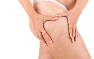 Rạn đùi là tình trạng da thường gặp