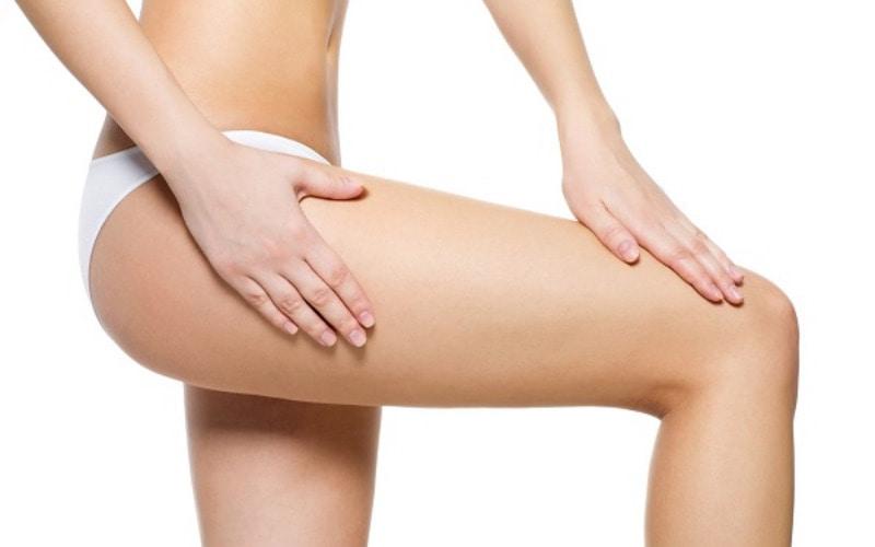 Ai cũng muốn có làn da không bị rạn